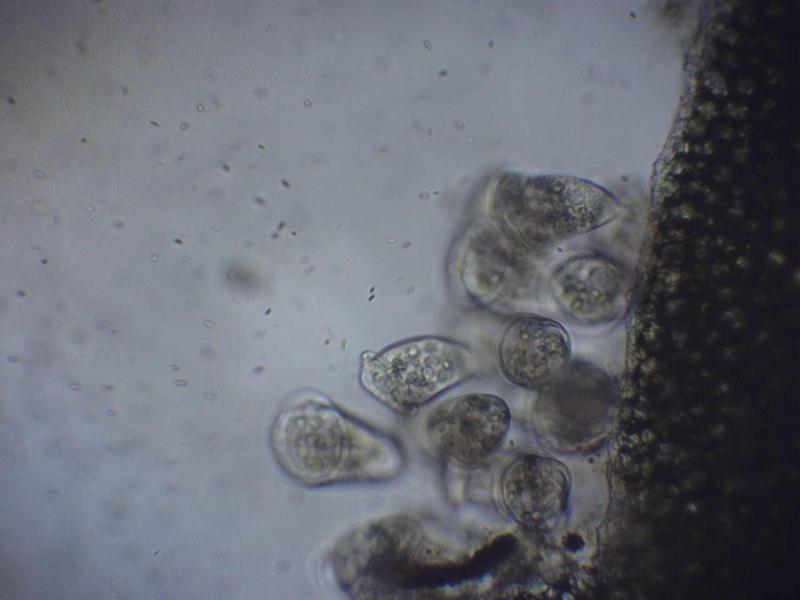 prvoci-virenky-v-mikroskopu